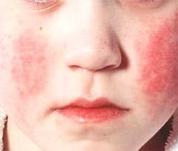 Scarlet fever in children: symptoms, treatment, complications