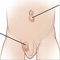 мелкая сыпь по всему телу у ребенка не чешется фото чем лечить