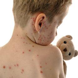 Prevention of chickenpox in children.