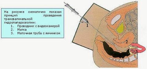 ТГЛ или трансвагинальная гидролапароскопия