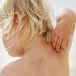 Symptoms of atopic dermatitis in children.