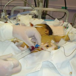 Гемолитическая болезнь новорожденных. Что это?